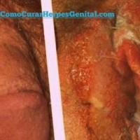 como-curar-herpes-genital-definitivamente-sintomas-genitales-09
