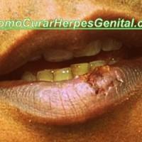 como-curar-herpes-labial-25
